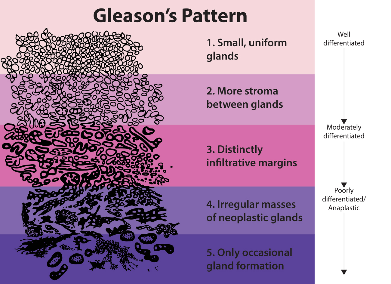 GLEASON'S PATTERN SHOWING INCREASING PRESENCE OF CANCER CELLS FROM TOP TO BOTTOM